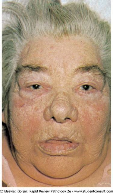 Primary hypothyroidism in a patient with Hashimoto's thyro